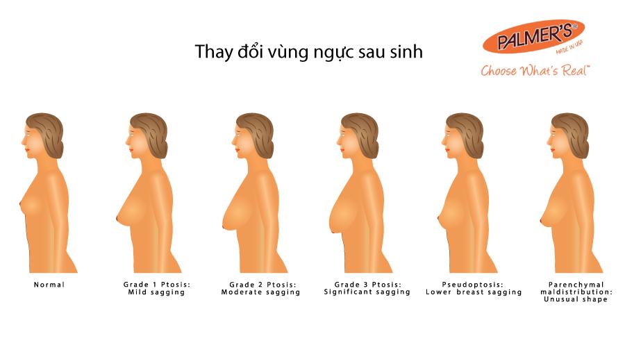 Thay đổi nghiêm trọng trong cơ thể người mẹ sau khi sinh con